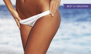 Vis à Vis: One or Five Brazilian Waxes or One Bikini Wax at Vis à Vis (Up to 57% Off)