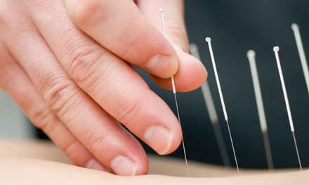 TDP-Lamp Treatment and One or Two 45-Minute Acupuncture Sessions at Northwest Acupuncture Center (Up to 80% Off)