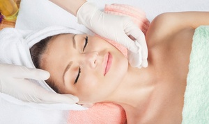 CarMa MedSpa Centers: One, Three, or Five Microdermabrasion Facial Treatments at CarMa MedSpa Centers (Up to 56% Off)