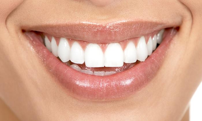 Fino a 4 visite con pulizia denti, sbiancamento led e buono di2400 € per ortodonzia (sconto fino a 92%)