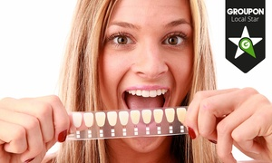 London Smile Kraft: London Smile Kraft: LED (from £69) or ZOOM! (from £109) Teeth Whitening (Up to 84% Off)