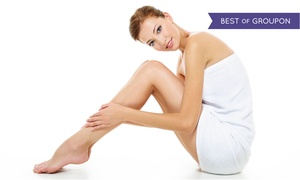Northern Virginia Wellness Center: One or Two Spider-Vein Therapy Treatments at Northern Virginia Wellness Center (Up to 75% Off)