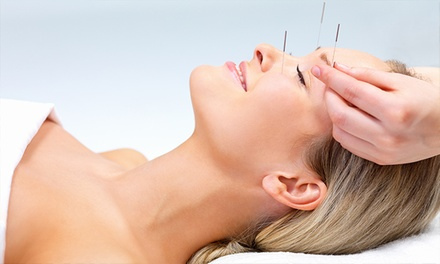 One or Three Acupuncture Sessions with an Initial Consultation at H&J Healing Clinic (Up to 77% Off)