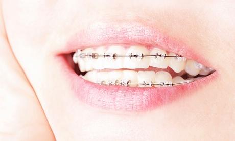 Tratamiento de ortodoncia con brackets metálicos, de cerámica o de zafiro y 6 meses de revisiones desde 259 € en Sarrià