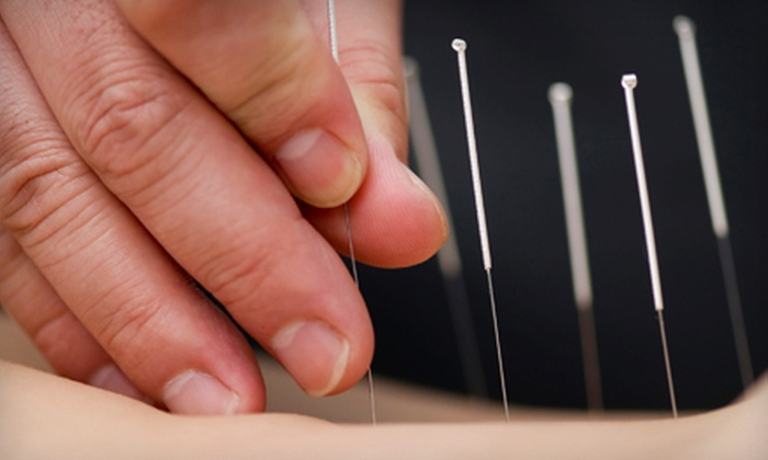 RiverHill Wellness Center - Dorsey Search: One or Two Acupuncture Treatments at RiverHill Wellness Center (74% Off)
