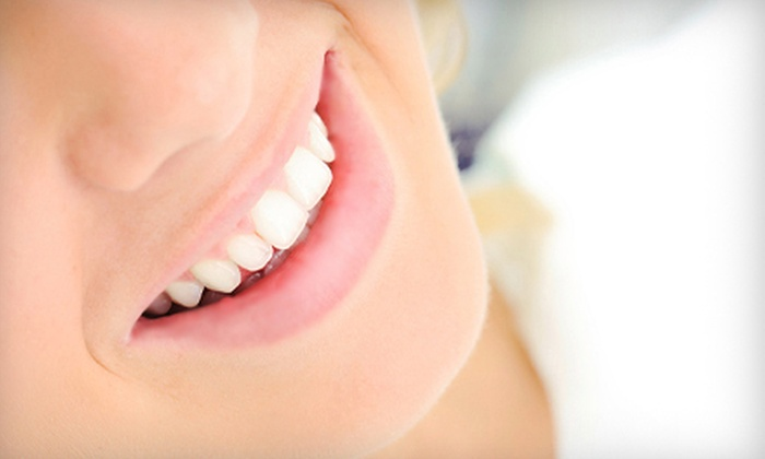 Idol Smile - Southfield: In-Office Laser Teeth Whitening with Optional Take-Home Custom Whitening Kit at Idol Smile (Up to 63% Off)