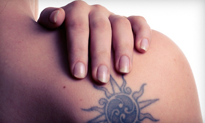 "Prescription 2 Fitness - Vestavia Hills: Three Laser Tattoo-Removal Treatments for an Area Up to 4""x4"" or 6""x6"" at Prescription 2 Fitness (Up to 72% Off)"