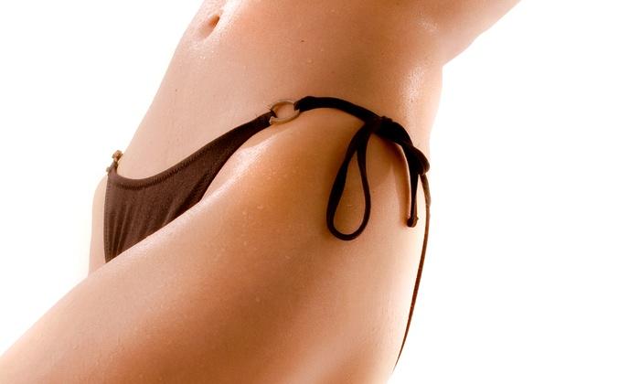 Faith Esterson, M.D. Dermatology and Skin Care - Pikesville: Four VelaShape Treatments for Thighs or Stomach at Faith Esterson Dermatology and Skin Care (82% Off)
