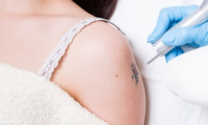 Studio Medico Rimozione Tatuaggi: Rimozione tatuaggio in nero fino a 10 x 10 cm da Studio Medico Rimozione Tatuaggi (sconto fino a 63%)