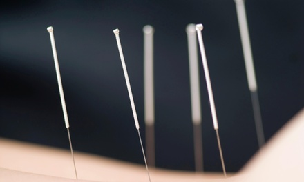 An Acupuncture Treatment and an Initial Consultation at Katie Gaffney, L.Ac. (45% Off)