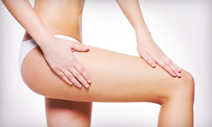 BodyTrends the ElectroSpa - Multiple Locations: Two, Four, Six, or Eight Laser Spider-Vein Treatments at BodyTrends the ElectroSpa (Up to 73% Off)