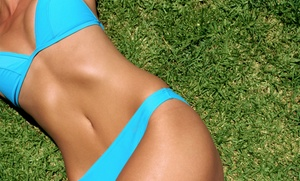 Mari Ann Laser Care: Three or Six Laser Skin-Tightening Sessions on One or Two Areas at Mari Ann Laser Care (Up to 91% Off)
