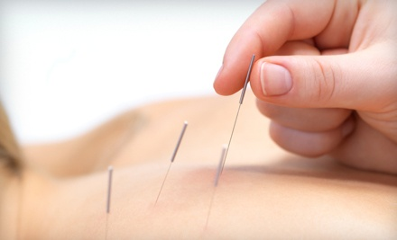 Chiropractic Package - Snyder Chiropractic and Acupuncture in Tulsa