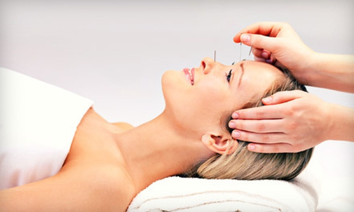 Flying Dragon Acupuncture - Pantops: One or Three Acupuncture Treatments with Consultation at Flying Dragon Acupuncture in Charlottesville (Up to 70% Off)