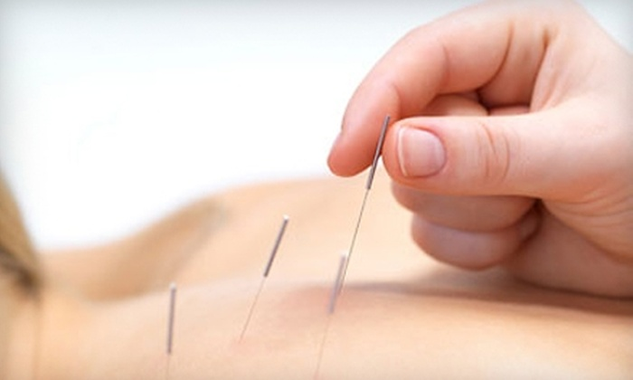 Acupuncture Pain Control Center - Boynton Beach: $39 for Consultation, One-Hour Acupuncture Session, and 10-Minute Massage at Acupuncture Pain Control Center ($135 Value)