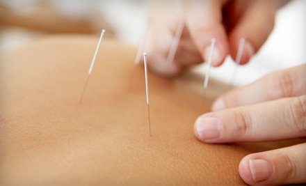 Acupuncture at Lumina Sanare Healing Center (Up to 60% Off). Three Options Available.