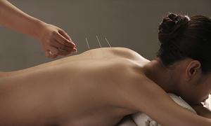 Centro Qi Sabadell: 6 o 12 sesiones de acupuntura desde 39,95 € en Centro Qi Sabadell