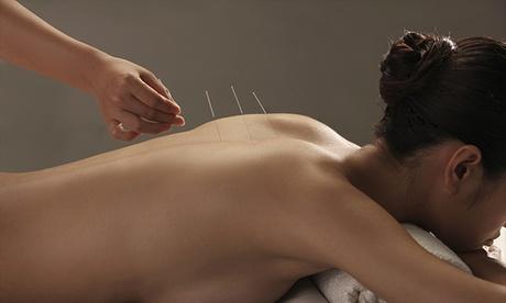 6 o 12 sesiones de acupuntura desde 39,95 € en Centro Qi Sabadell