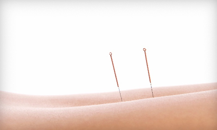 Meridian Harmonics Acupuncture & Oriental Medicine - Bedford: One, Three, or Five Acupuncture Visits to Meridian Harmonics Acupuncture & Oriental Medicine in Bedford (Up to 75% Off)