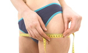 Dream Body Sculpting: Three Body-Contouring Sessions at Dream Body Sculpting (45% Off)