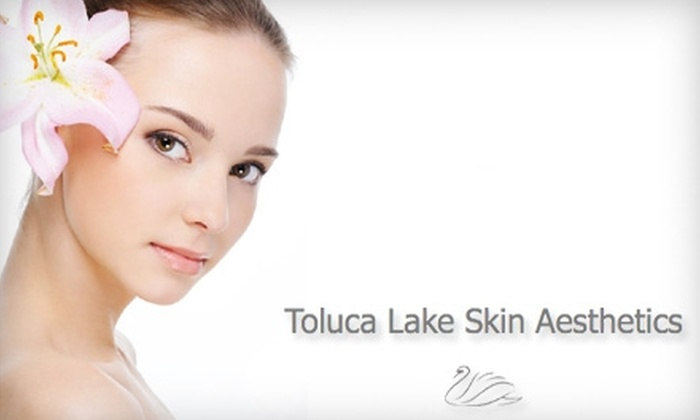 Toluca Lake Skin Aesthetics - Toluca Lake: $55 for One Ultra Peel 1 Treatment at Toluca Lake Skin Aesthetics in Burbank ($120 Value)