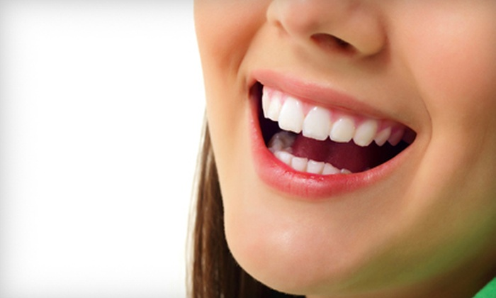 Ada's Skin Care and Salon: One or Two Frosting Teeth-Whitening Kits from Ada's Skin Care in Spring (Up to 73% Off)