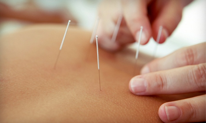 Community Acupuncture San Anselmo - San Anselmo: Two or Four Acupuncture Sessions at Community Acupuncture San Anselmo (Up to 74% Off)