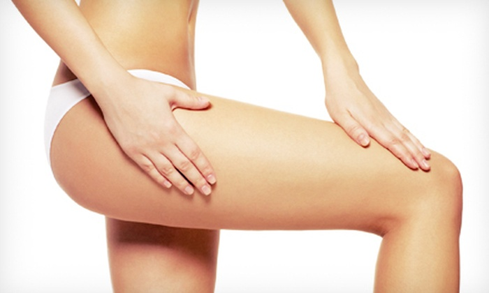 Maple Grove Wellness Center - Maple Grove: 6 or 12 Slimspec Cellulite-Reduction Treatments at Maple Grove Wellness Center (Up to 77% Off)