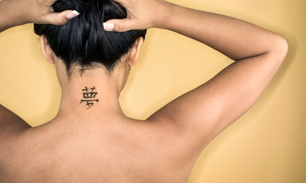 Laser Tattoo Removal for a Small, Medium, or Large Area at ReNu Cosmetic Laser Center (Up to 78% Off)