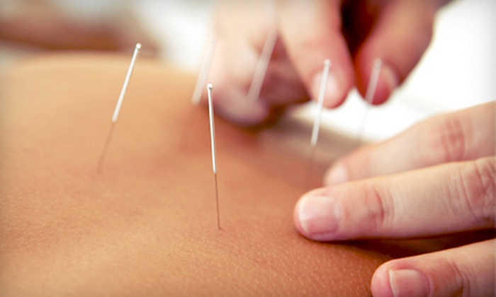 Integrative Hospital Associates - Multiple Locations: One-, Two-, or Three-Visit Acupuncture Package at Integrative Hospital Associates (Up to 84% Off)