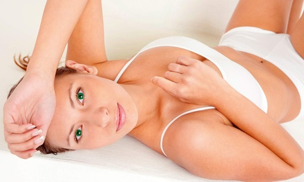Laser Hair Removal at The Nu Me Laser and Wellness Clinic (Up to 83% Off). Four Options Available.