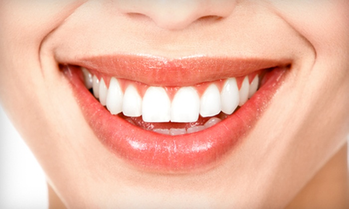 Your Shelbyville Dental Home - Shelbyville: $999 for Top or Bottom Invisalign Treatment, Exam, and Take-Home Whitening at Your Shelbyville Dental Home ($3,900 Value)