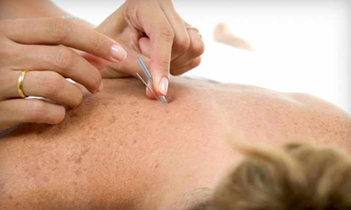 B-Alternative  - Downtown Miami: One or Two Acupuncture Sessions at B-Alternative (Up to 70% Off)