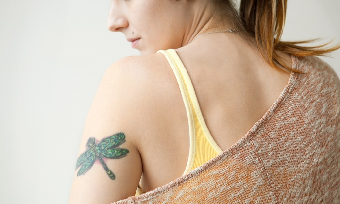 Rejuvenating Skin Care Medical Aesthetic - Montebello: Three Tattoo-Removal Treatments for an Area Up to 3, 6, or 10 Square Inches at Rejuvenating Skin Care (Up to 71% Off)