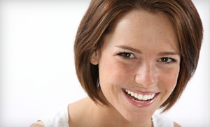 Perfect Ten Cosmetic Teeth Whitening: $49 for an In-Office Teeth-Whitening Treatment with Custom Trays at Perfect Ten Cosmetic Teeth Whitening ($199 Value)