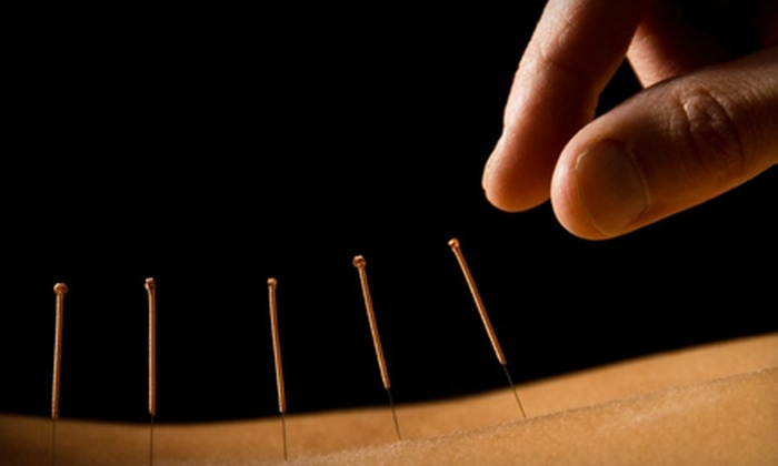Columbus Acupuncture - Multiple Locations: One or Three Traditional or Needle-Free Acupuncture Sessions at Columbus Acupuncture (Up to 65% Off)