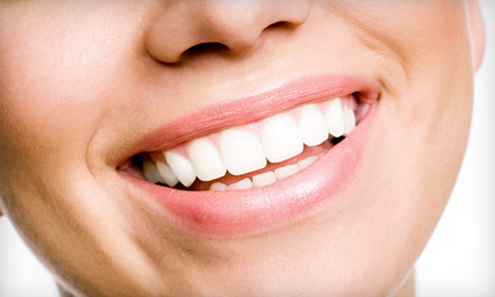 Avery Dental Center - Multiple Locations: One, Two, or Four Crowns or Veneers at Avery Dental Center (Up to 57% Off)