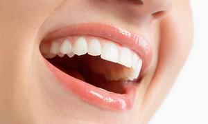 FONT CLINIC: Ortodoncia con brackets metálicos por 299 €, estéticos de cerámica por 499 € o de zafiro desde 699 € en dos centros