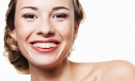 $29 for a FastBraces Consultation and $500 Credit at Downtown Dental Care ($500 Value)