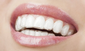 Nicholas Cosmetic Dental Center: $199 for $1,500 Toward Clear Braces Package at Nicholas Cosmetic Dental Center ($2,150 Value)