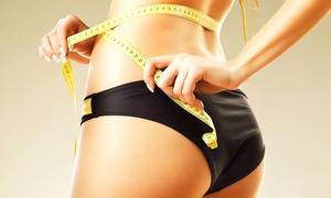 Ian Williams Hypnotherapy Swansea: Gastric Band Hypnotherapy from £65 at Ian Williams Hypnotherapy (Up to 52% Off)