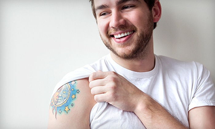 "American Tattoo Company - Spring: Two Non-Laser Tattoo-Removal Treatments for a 1""x1"" or 2""x2"" Area at American Tattoo Company (Up to 74% Off)"