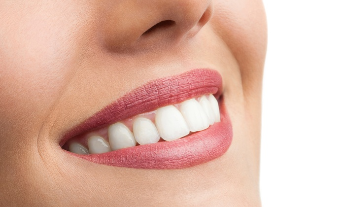 Steven Donia D.D.S. - Encino: Exam, X-Rays, and $1,500 Toward Invisalign Treatment at Steven Donia D.D.S. (97% Off). Two Options Available.