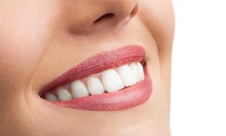 Limpieza bucal completa con opción a férula de descarga semirrígida desde 9,95 € enClínica Dental Alzira