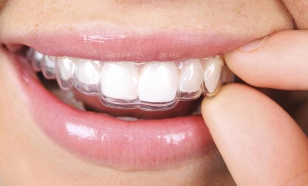 Visita E Pulizia Ablazione Tartaro E Allineatori Dentali Invisibili In Studio Odontoiatrico Sconto Fino A 75