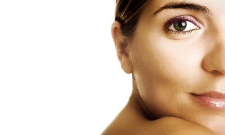 Three or Five Microdermabrasions or Dermaplaning Treatments with Lactic Acid Peels at Radiance Skin Care (Up to 65% Off)