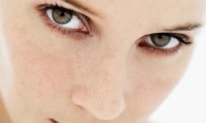 Pure Facial Plastic Surgery & MedSpa of Huntersville: Blepharoplasty on the Upper Eyelids, Lower Eyelids, or Both at Pure Facial Plastic Surgery (Up to 52% Off)