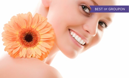 91% Off IPL Photofacials at Laser 528