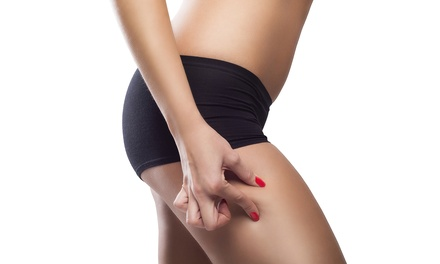 $2,999 for a Cellulaze Cellulite-Reduction Treatment at Cosmetic Skin and Surgery Center ($7,000 Value)