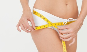 ולריה פולק קליניקה לאסתטיקה רפואית: 3 טיפולי הצרת היקפים והמסת שומן באולטראסאונד רק ב-129 ₪, 5 טיפולים + 5 אימוני רטט ב-199 ₪ בלבד! תקף גם בשישי